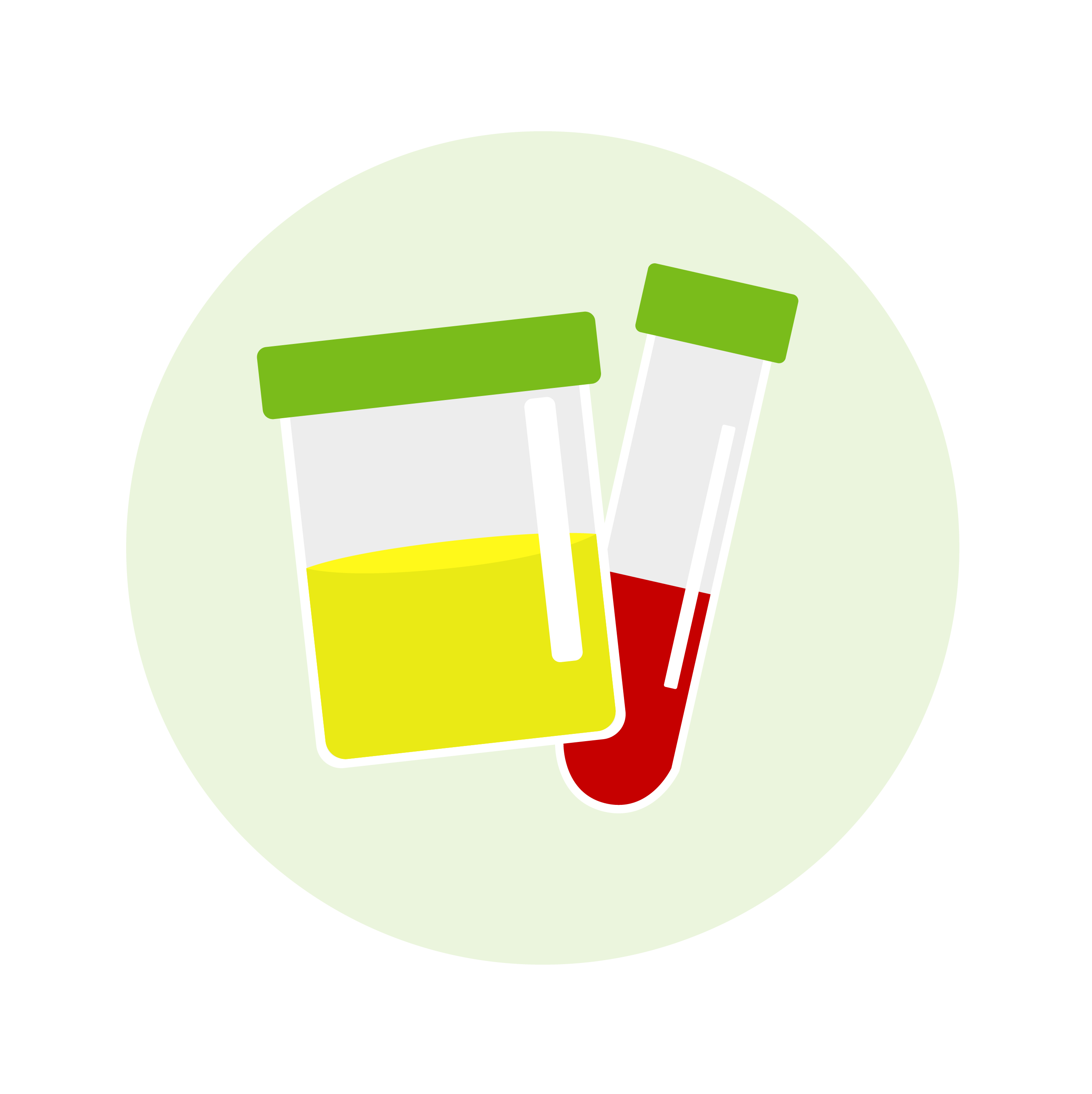 urine container and test tube with blood